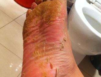 介绍足癣复发有什么症状