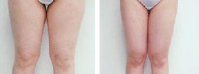 水动力吸脂减肥瘦大腿
