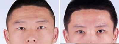 肉毒素祛眉间纹