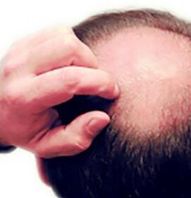 禿頂平時該怎么樣護理