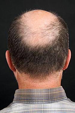禿頂初期怎么治療