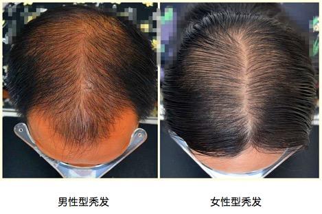 禿頂發病后有哪些患病特征