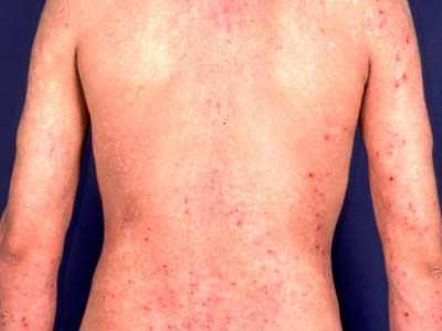 皮炎是不是傳染病嗎