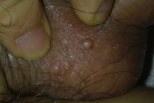 什么方法可治愈皮炎
