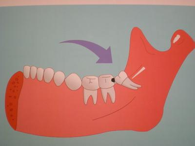 牙痛按摩哪個穴位可快速止痛