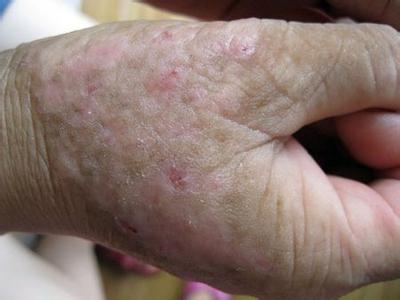 神经性皮炎会引起的危害