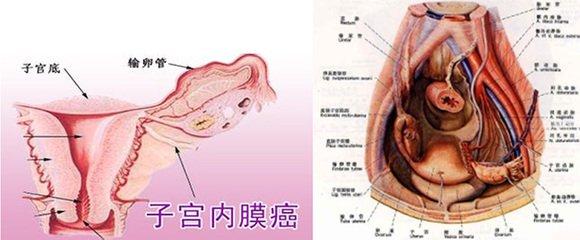 子宮內膜癌病復發的癥狀是什么