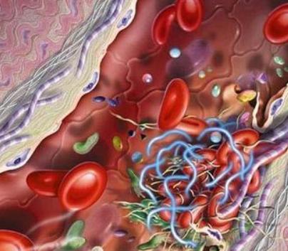 静脉炎临床表现有哪些