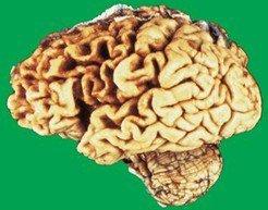 脑萎缩病人护理要点
