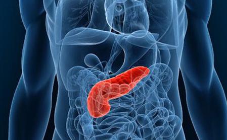 胰腺癌什么原因引起的