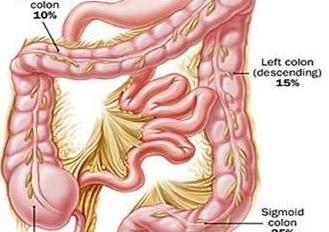 直腸息肉癌變后會出現什么癥狀