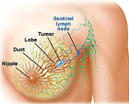 乳腺癌的护理措施