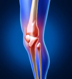 强直性脊柱炎的起因有哪些