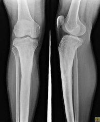 什么是急性骨髓炎
