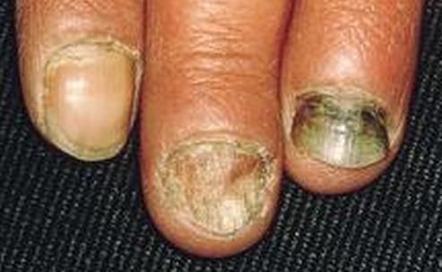 灰指甲发作特点有哪些