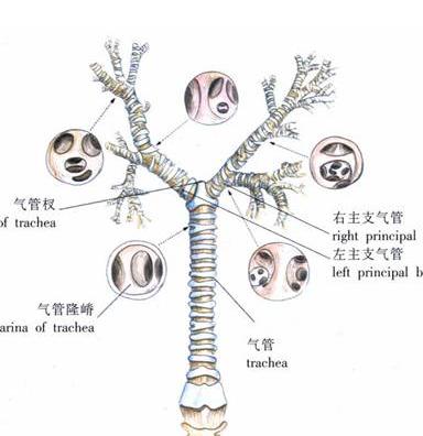 解剖结构异常为特征,是由于支气管及其周围肺组织慢性化脓性炎症和