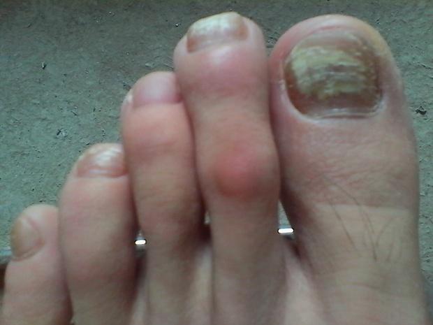 营养不足易引起灰指甲感染