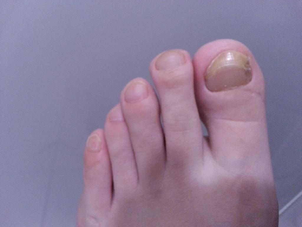 远离脚气可预防灰指甲