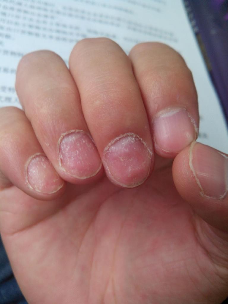 什么原因会引起灰指甲复发