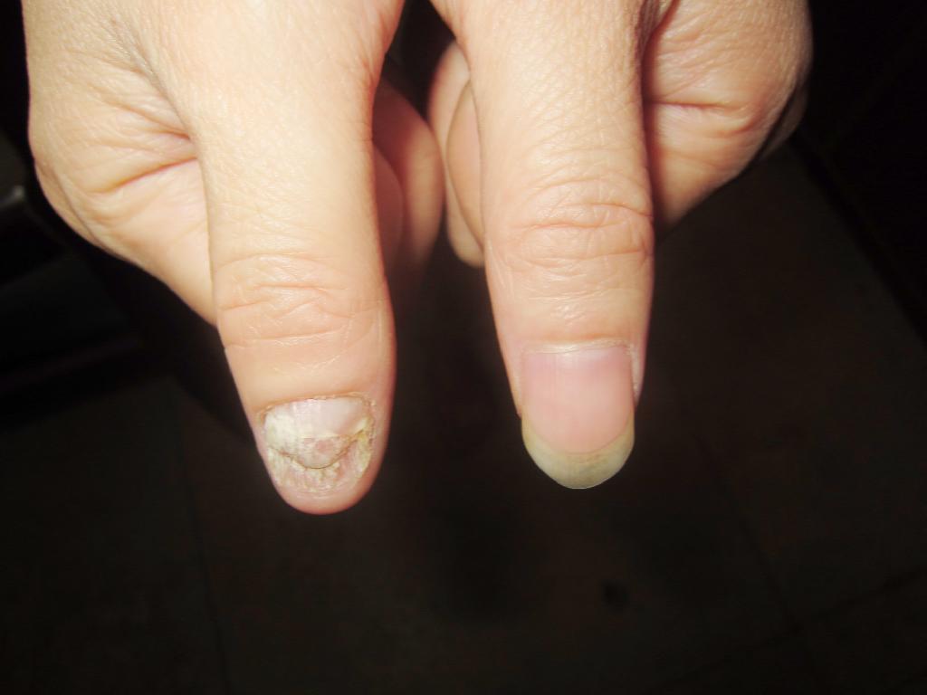 灰指甲治好后会复发吗