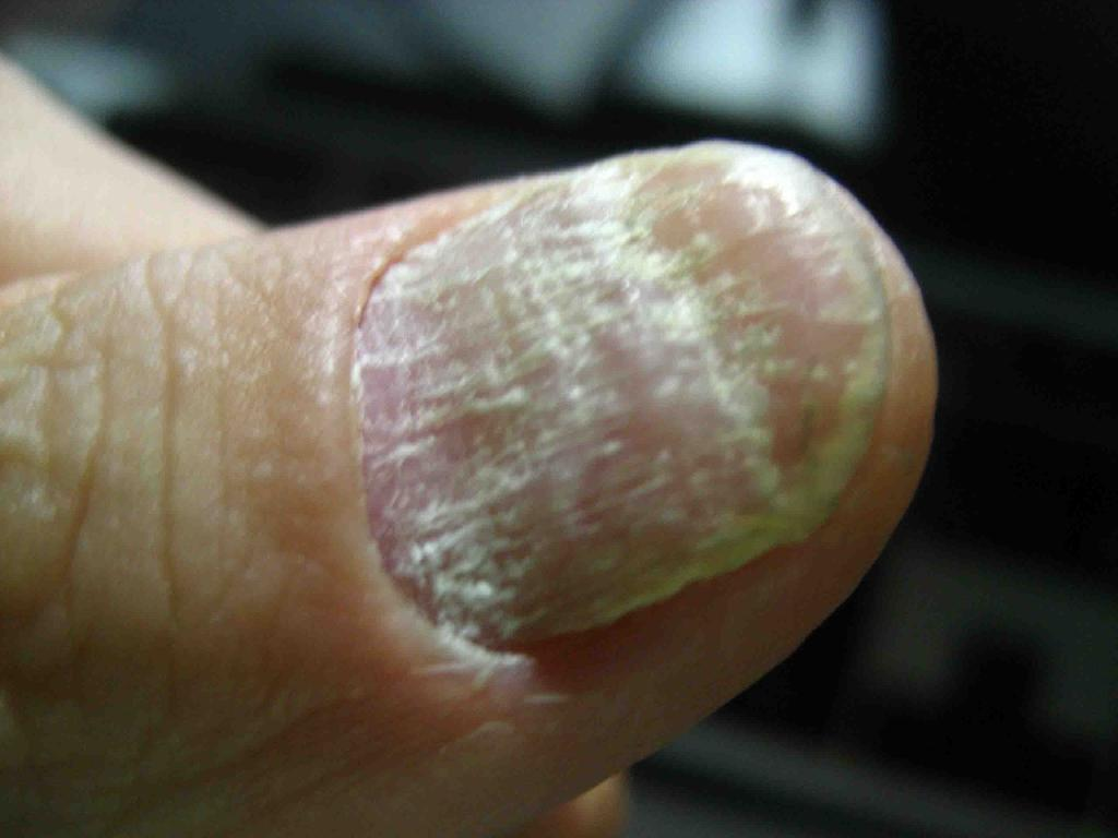 警惕老年人易患灰指甲