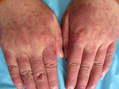 红斑狼疮是否有传染性