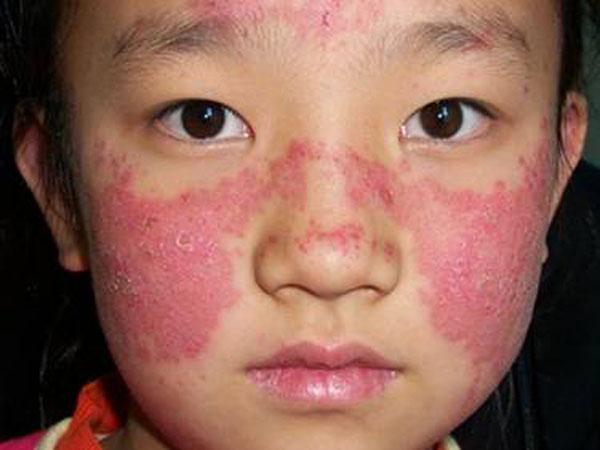红斑狼疮是什么疾病