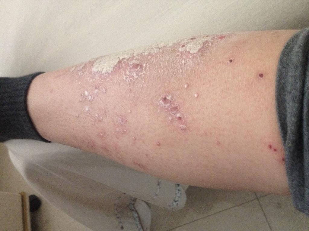 腿上长了牛皮癣会传染吗?