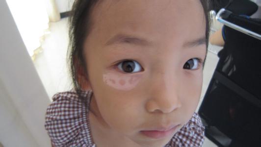 儿童白癜风的症状是什么样的?
