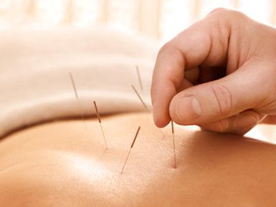针灸治疗白癜风方法介绍