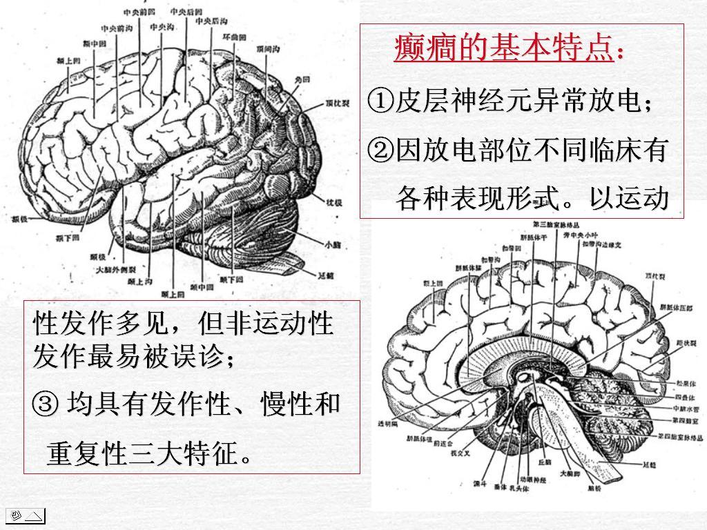 癫痫是遗传的吗