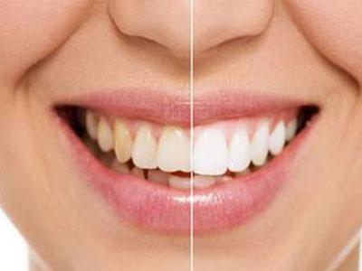 牙釉质发育不全能做牙齿冷光美白吗