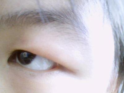 """""""金鱼眼""""的人其眼球外凸,若做双眼皮埋线手术,必然使人觉得眼球愈加"""