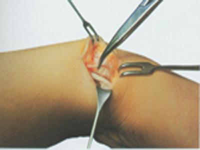 腱鞘炎的偏方