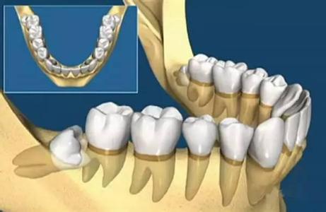 智齿冠周炎症状有哪些