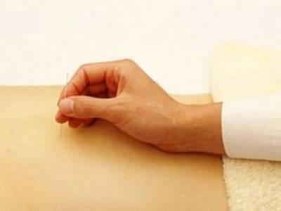 针灸减肥期间需要注意什么