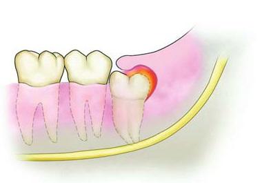 智齿冠周炎的常识性护理是什么