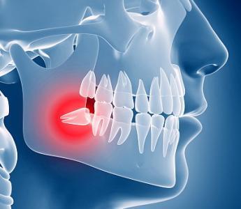 得了智齿冠周炎该如何治疗