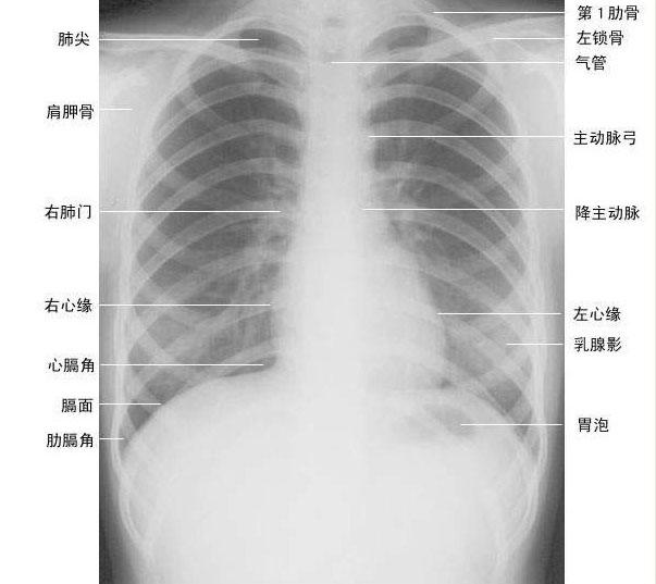 正常胸部影像解剖图