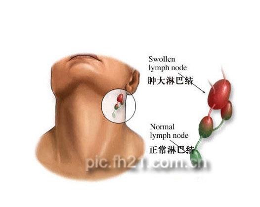 牙癌是什么症状_口腔癌的五种可疑症状