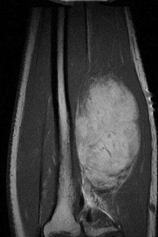 海绵状血管瘤影像表现