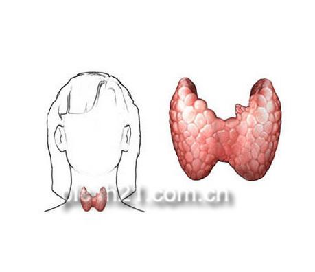 甲状腺癌的症状图