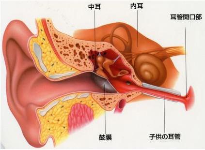 中耳炎 是累及中耳( 包括咽鼓管鼓室 鼓窦及乳突气房 )全部或部分结构