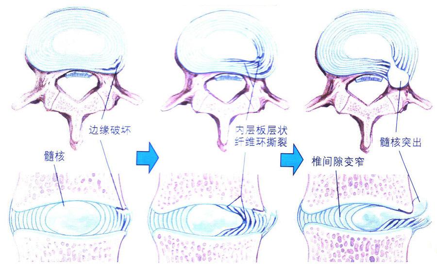 腰椎间盘突出症状表现