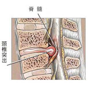 颈椎突出症的结构图