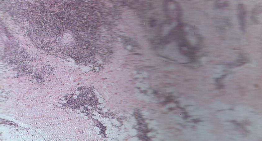 亚急 性 皮肤型 红斑狼疮 的皮损表现为上覆细小鳞屑的红斑,角化过度