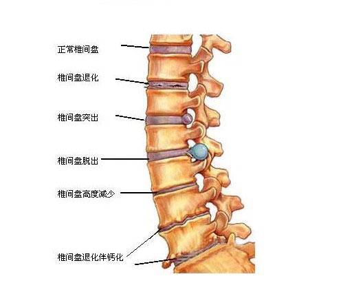 颈椎间盘突出解剖学