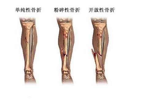 骨折修复术图片