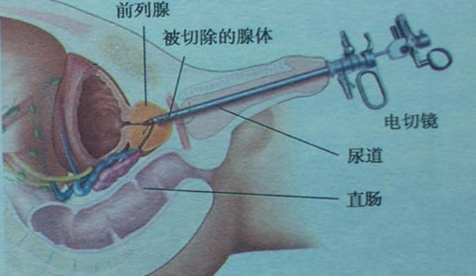 有关前列腺结石怎么彻底治愈的问题