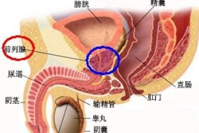 得前列腺结石有大半年能治好吗